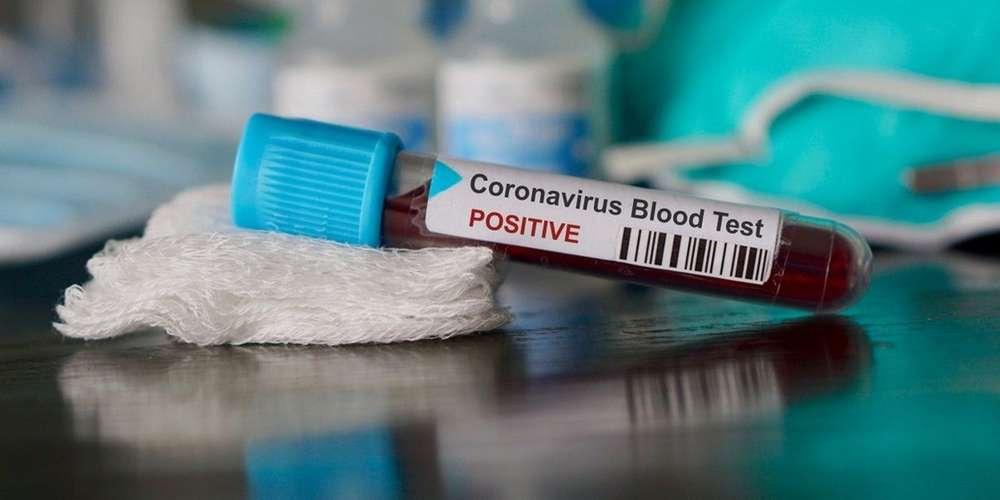 Coronaviru Algerie